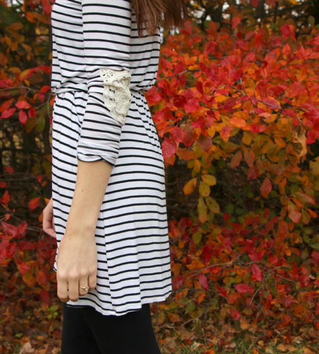 lace-elbow-patch-dress